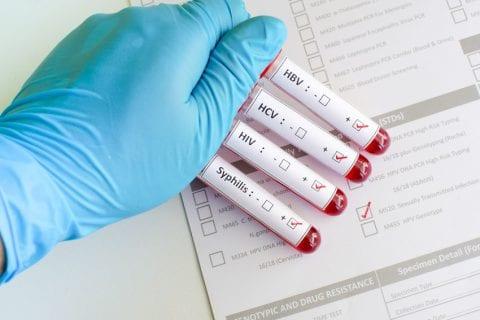 Rastreio VIH, Sifilis e Hepatite B/C